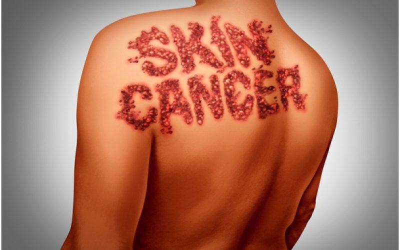 Recuperate From Skin Cancer With Its Diagnosis